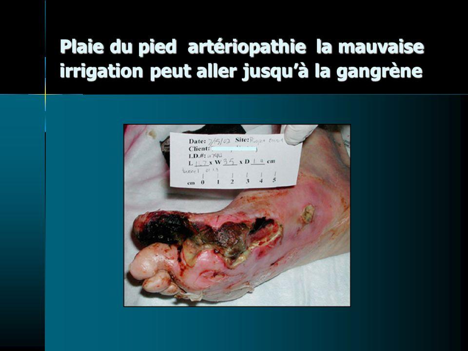 Plaie du pied artériopathie la mauvaise irrigation peut aller jusquà la gangrène