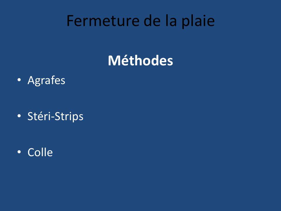 Fermeture de la plaie Méthodes Agrafes Stéri-Strips Colle