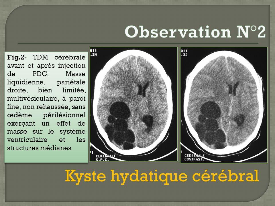Fig.2- TDM cérébrale avant et après injection de PDC: Masse liquidienne, pariétale droite, bien limitée, multivésiculaire, à paroi fine, non rehaussée