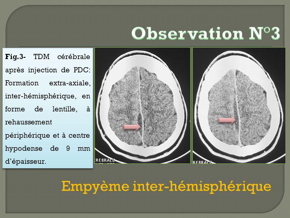 Fig.3- TDM cérébrale après injection de PDC: Formation extra-axiale, inter-hémisphérique, en forme de lentille, à rehaussement périphérique et à centr