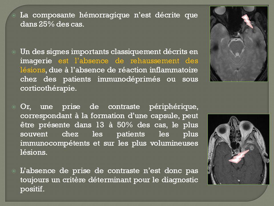 La composante hémorragique nest décrite que dans 25% des cas. Un des signes importants classiquement décrits en imagerie est labsence de rehaussement