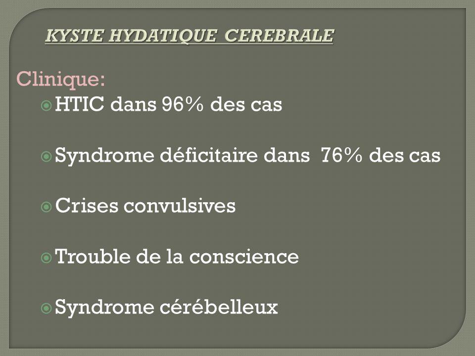Clinique: HTIC dans 96% des cas Syndrome déficitaire dans 76% des cas Crises convulsives Trouble de la conscience Syndrome cérébelleux