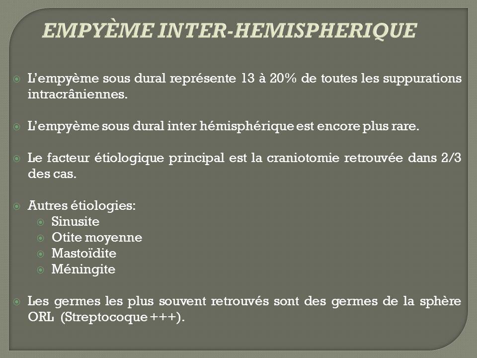 Lempyème sous dural représente 13 à 20% de toutes les suppurations intracrâniennes. Lempyème sous dural inter hémisphérique est encore plus rare. Le f