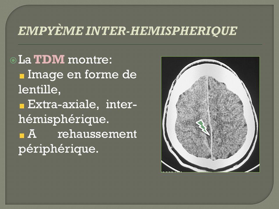 La TDM montre: Image en forme de lentille, Extra-axiale, inter- hémisphérique. A rehaussement périphérique.