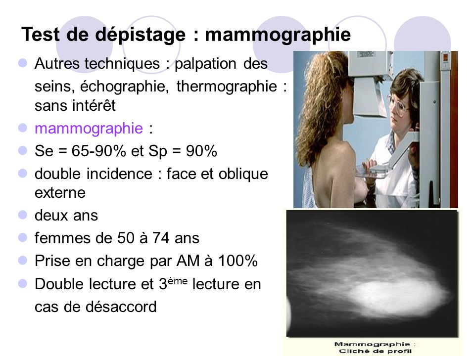Test de dépistage : mammographie Autres techniques : palpation des seins, échographie, thermographie : sans intérêt mammographie : Se = 65-90% et Sp = 90% double incidence : face et oblique externe deux ans femmes de 50 à 74 ans Prise en charge par AM à 100% Double lecture et 3 ème lecture en cas de désaccord