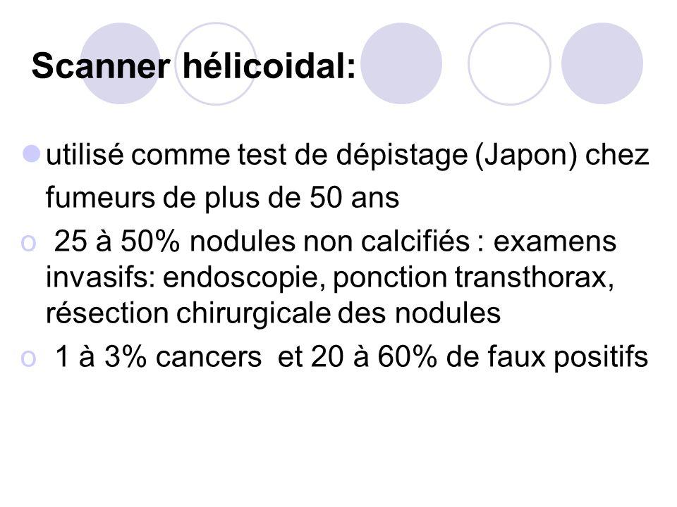 Scanner hélicoidal: utilisé comme test de dépistage (Japon) chez fumeurs de plus de 50 ans o 25 à 50% nodules non calcifiés : examens invasifs: endoscopie, ponction transthorax, résection chirurgicale des nodules o 1 à 3% cancers et 20 à 60% de faux positifs