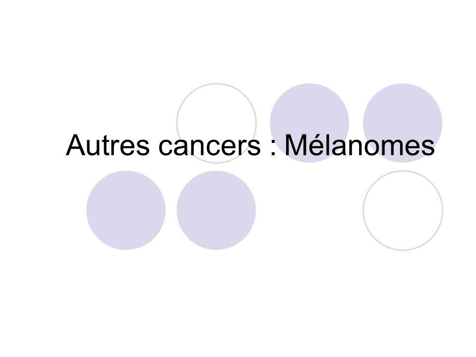 Autres cancers : Mélanomes