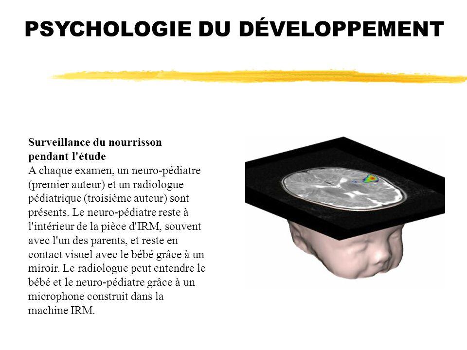 Surveillance du nourrisson pendant l'étude A chaque examen, un neuro-pédiatre (premier auteur) et un radiologue pédiatrique (troisième auteur) sont pr
