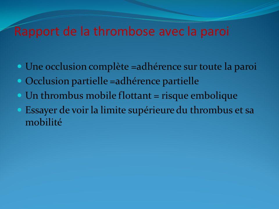 Rapport de la thrombose avec la paroi Une occlusion complète =adhérence sur toute la paroi Occlusion partielle =adhérence partielle Un thrombus mobile flottant = risque embolique Essayer de voir la limite supérieure du thrombus et sa mobilité