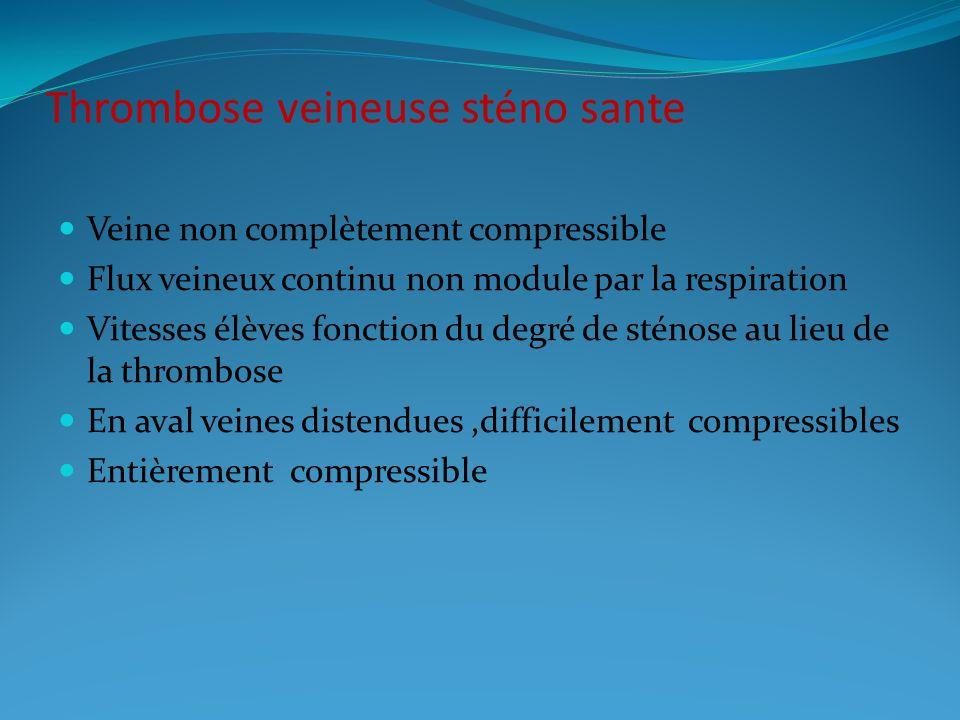 Thrombose veineuse sténo sante Veine non complètement compressible Flux veineux continu non module par la respiration Vitesses élèves fonction du degré de sténose au lieu de la thrombose En aval veines distendues,difficilement compressibles Entièrement compressible