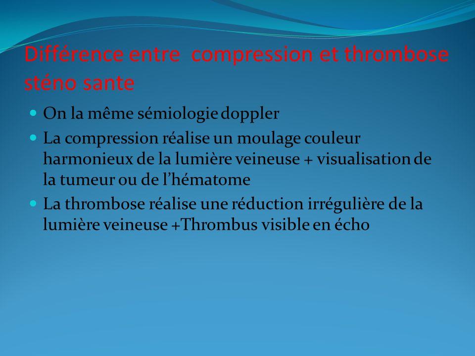 Différence entre compression et thrombose sténo sante On la même sémiologie doppler La compression réalise un moulage couleur harmonieux de la lumière veineuse + visualisation de la tumeur ou de lhématome La thrombose réalise une réduction irrégulière de la lumière veineuse +Thrombus visible en écho