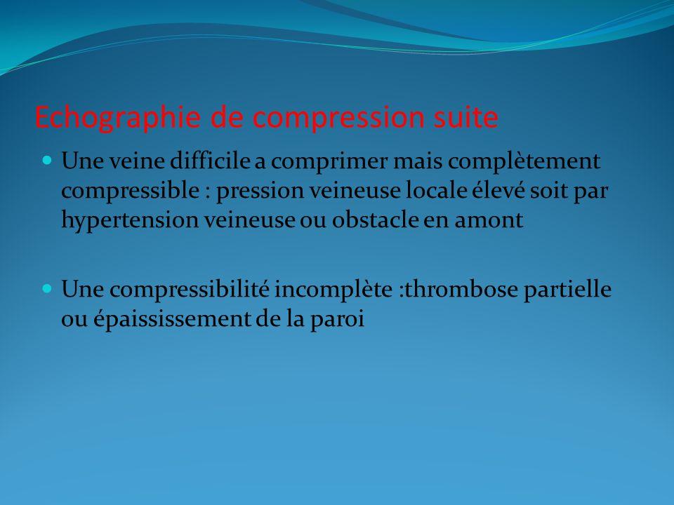 Echographie de compression suite Une veine difficile a comprimer mais complètement compressible : pression veineuse locale élevé soit par hypertension veineuse ou obstacle en amont Une compressibilité incomplète :thrombose partielle ou épaississement de la paroi