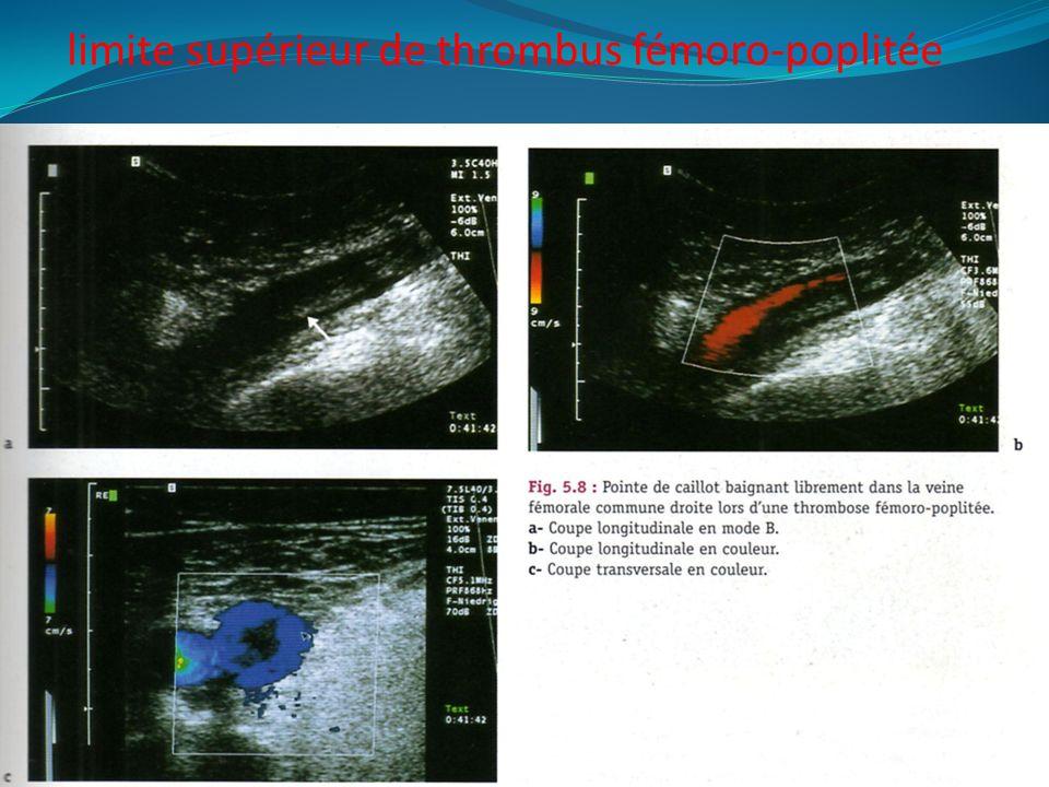 limite supérieur de thrombus fémoro-poplitée