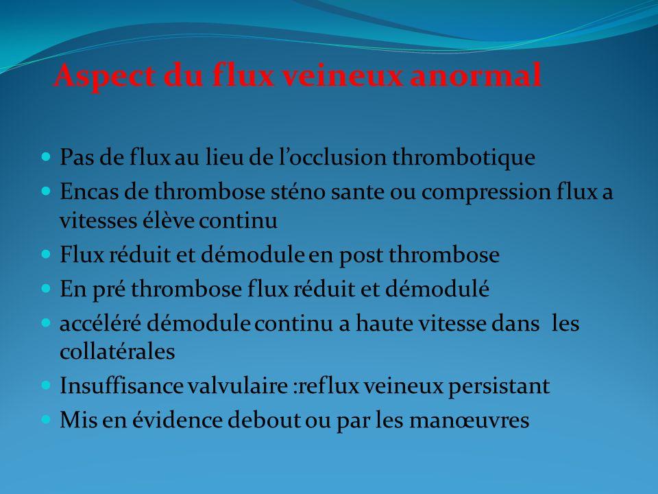 Pas de flux au lieu de locclusion thrombotique Encas de thrombose sténo sante ou compression flux a vitesses élève continu Flux réduit et démodule en post thrombose En pré thrombose flux réduit et démodulé accéléré démodule continu a haute vitesse dans les collatérales Insuffisance valvulaire :reflux veineux persistant Mis en évidence debout ou par les manœuvres Aspect du flux veineux anormal
