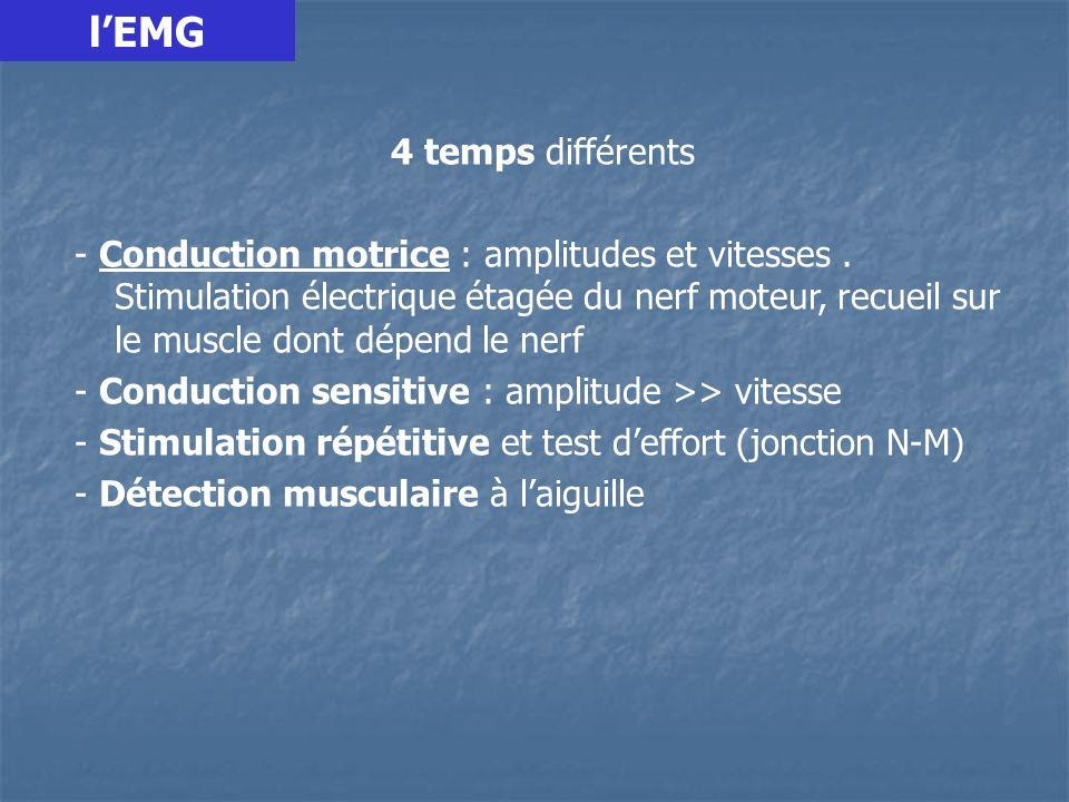 4 temps différents - Conduction motrice : amplitudes et vitesses.