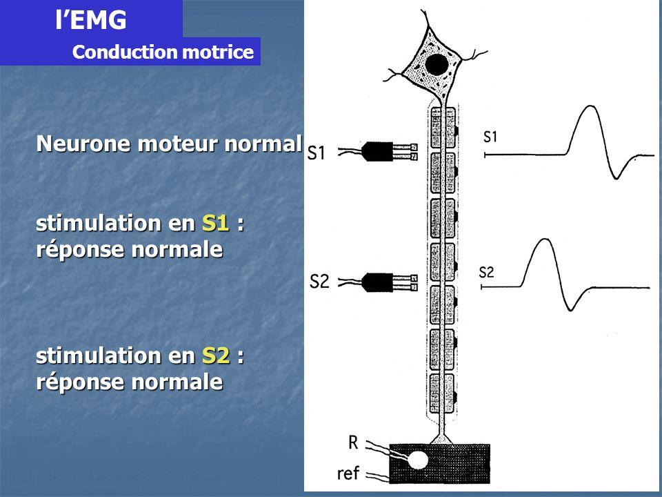 Neurone moteur normal stimulation en S1 : réponse normale stimulation en S2 : réponse normale lEMG Conduction motrice