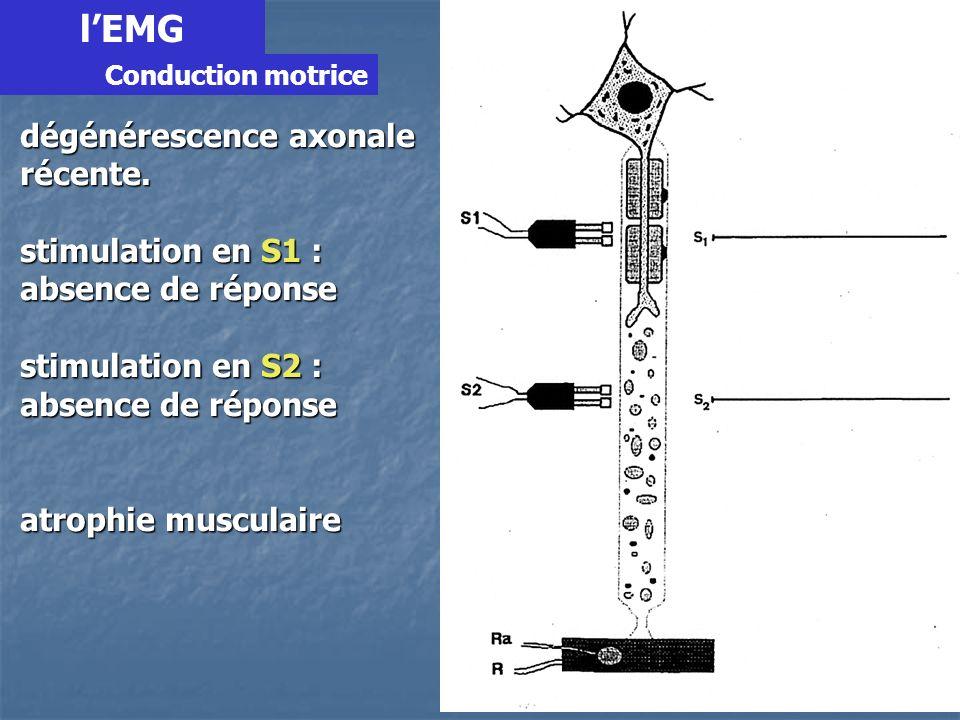 lEMG Démyélinisation segmentaire (sur un seul internode) = PRNA = PRNA stimulation en S1 : réponse évoquée normale mais latence allongée stimulation en S2 : réponse évoquée normale latence normale pas damyotrophie Conduction motrice