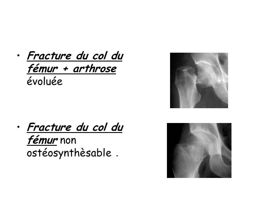 Fracture du col du fémur + arthrose évoluée Fracture du col du fémur non ostéosynthèsable.