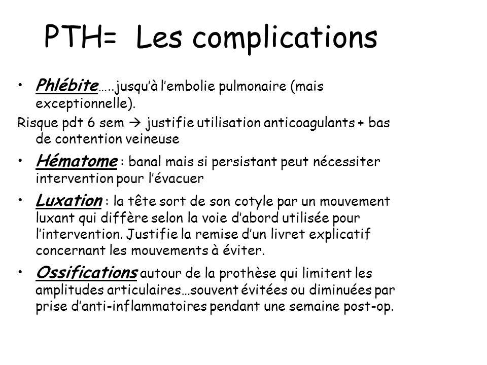 PTH= Les complications Phlébite …..jusquà lembolie pulmonaire (mais exceptionnelle).