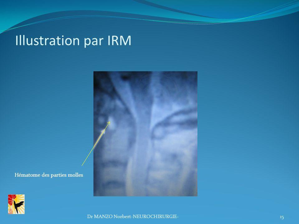 Illustration par IRM 15 Hématome des parties molles Dr MANZO Norbert-NEUROCHIRURGIE-