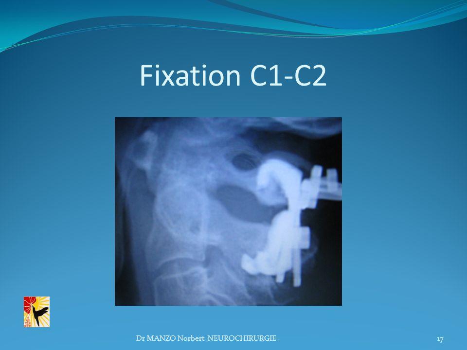 Fixation C1-C2 17Dr MANZO Norbert-NEUROCHIRURGIE-