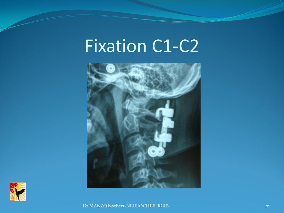 Fixation C1-C2 21Dr MANZO Norbert-NEUROCHIRURGIE-
