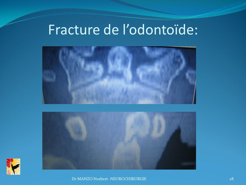 Fracture de lodontoïde: 28Dr MANZO Norbert- NEUROCHIRURGIE