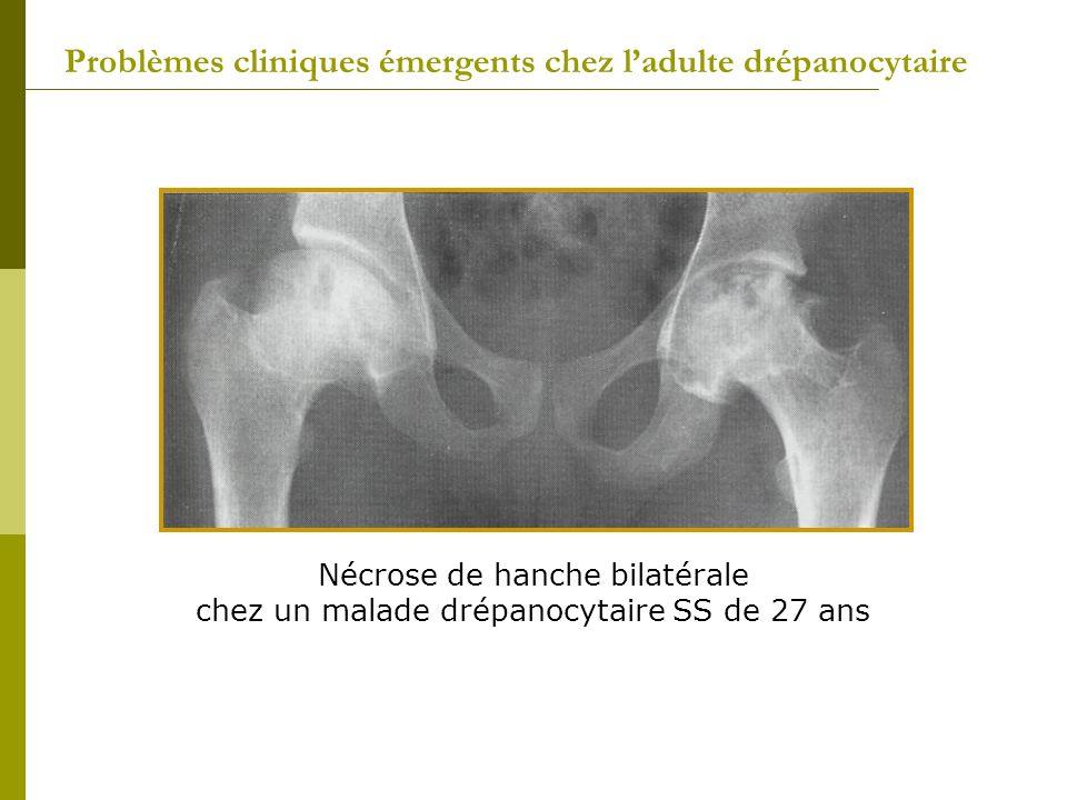 Nécrose de hanche bilatérale chez un malade drépanocytaire SS de 27 ans