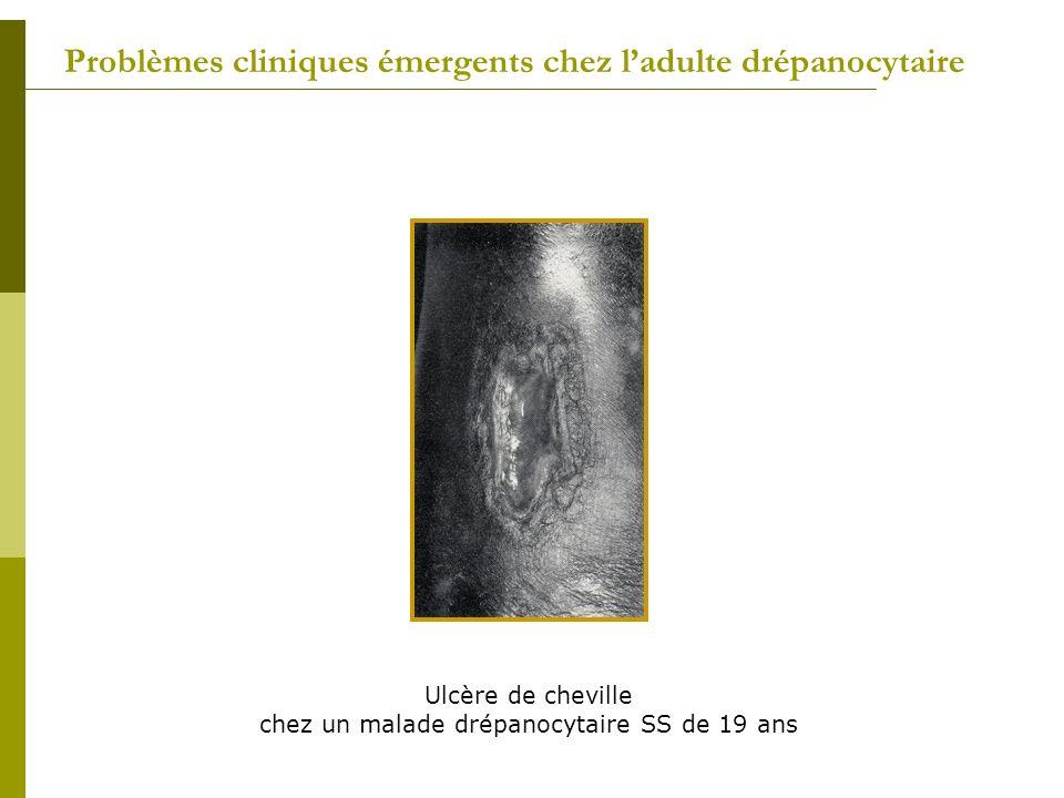 Problèmes cliniques émergents chez ladulte drépanocytaire Ulcère de cheville chez un malade drépanocytaire SS de 19 ans