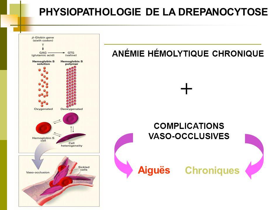 PHYSIOPATHOLOGIE DE LA DREPANOCYTOSE ANÉMIE HÉMOLYTIQUE CHRONIQUE + COMPLICATIONS VASO-OCCLUSIVES Aiguës Chroniques