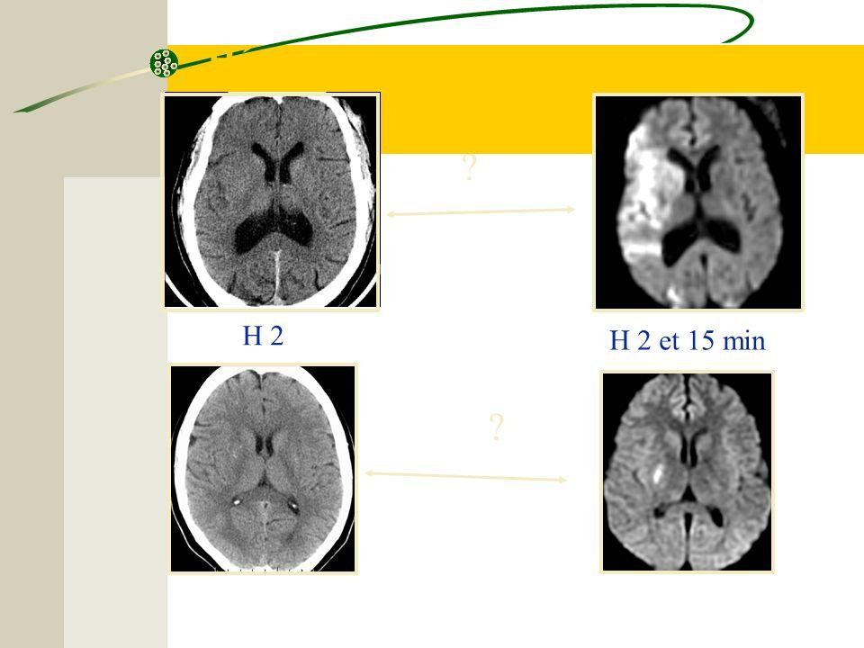 Hémiplégie gauche brutale ? H 2 ? H 2 et 15 min