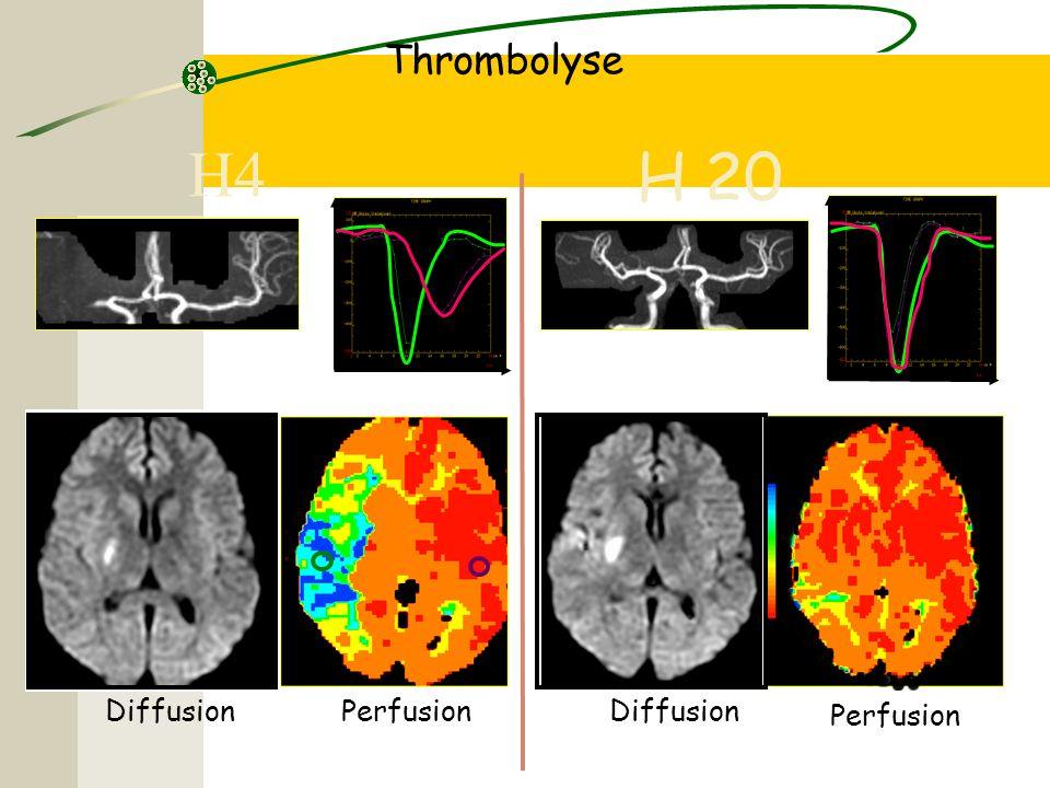 H4 Thrombolyse DiffusionPerfusion H 20 Diffusion Perfusion