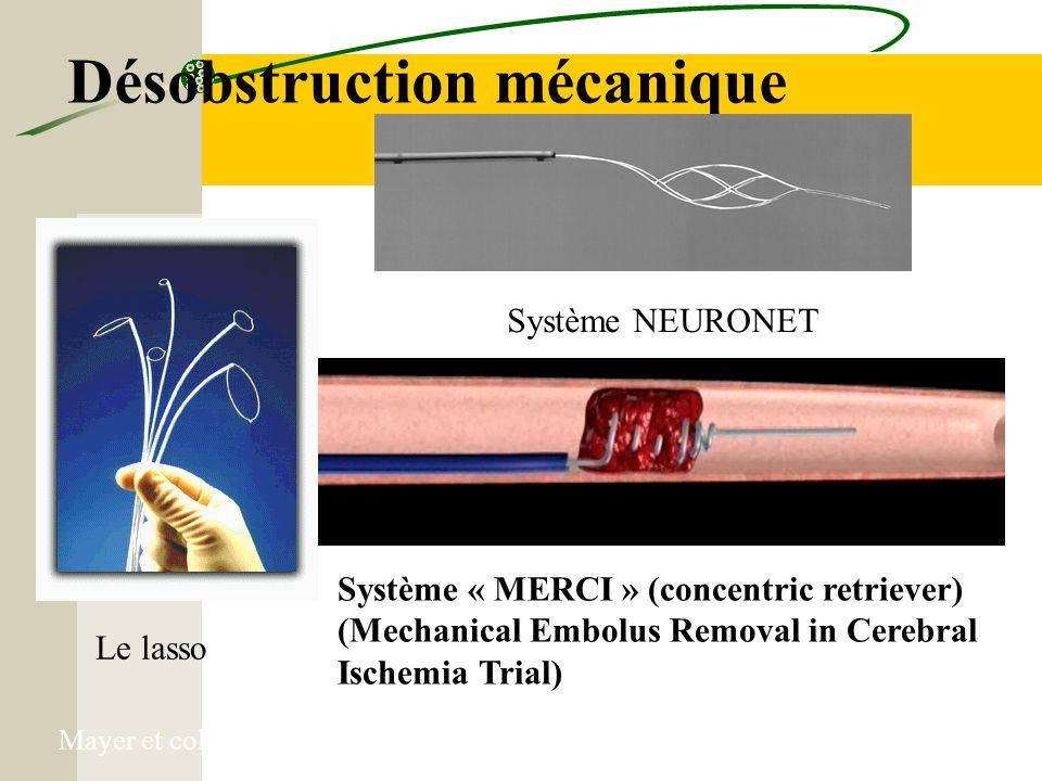 Désobstruction mécanique Système « MERCI » (concentric retriever) (Mechanical Embolus Removal in Cerebral Ischemia Trial) Pr P GOBIN, NY Le lasso Syst