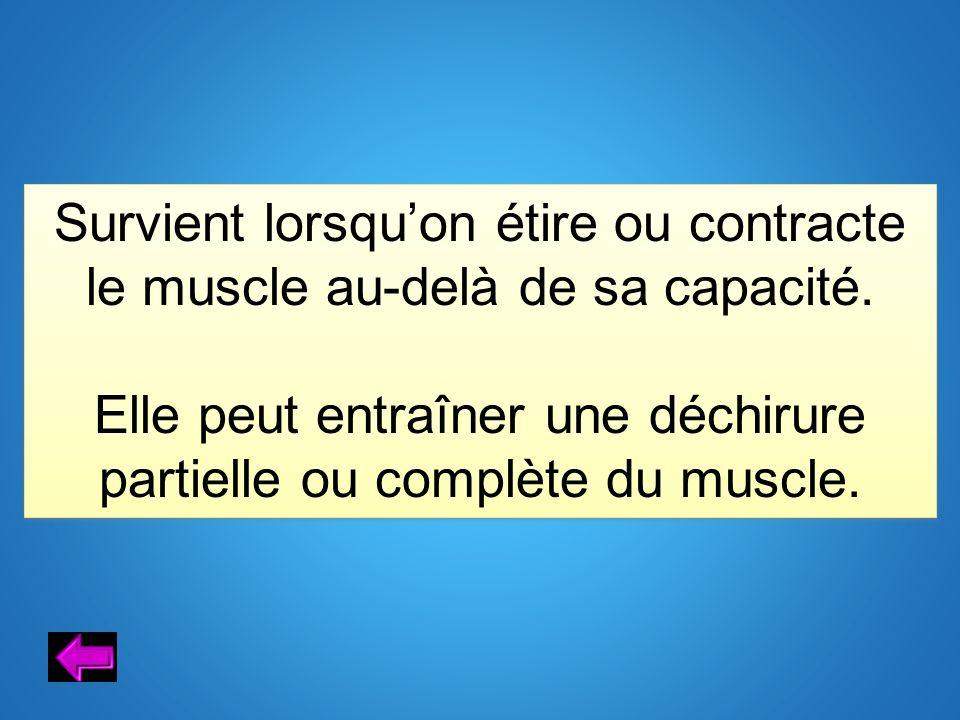 Survient lorsquon étire ou contracte le muscle au-delà de sa capacité. Elle peut entraîner une déchirure partielle ou complète du muscle. Survient lor