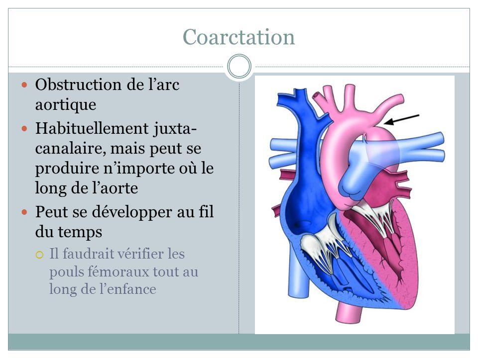 Coarctation Obstruction de larc aortique Habituellement juxta- canalaire, mais peut se produire nimporte où le long de laorte Peut se développer au fil du temps Il faudrait vérifier les pouls fémoraux tout au long de lenfance