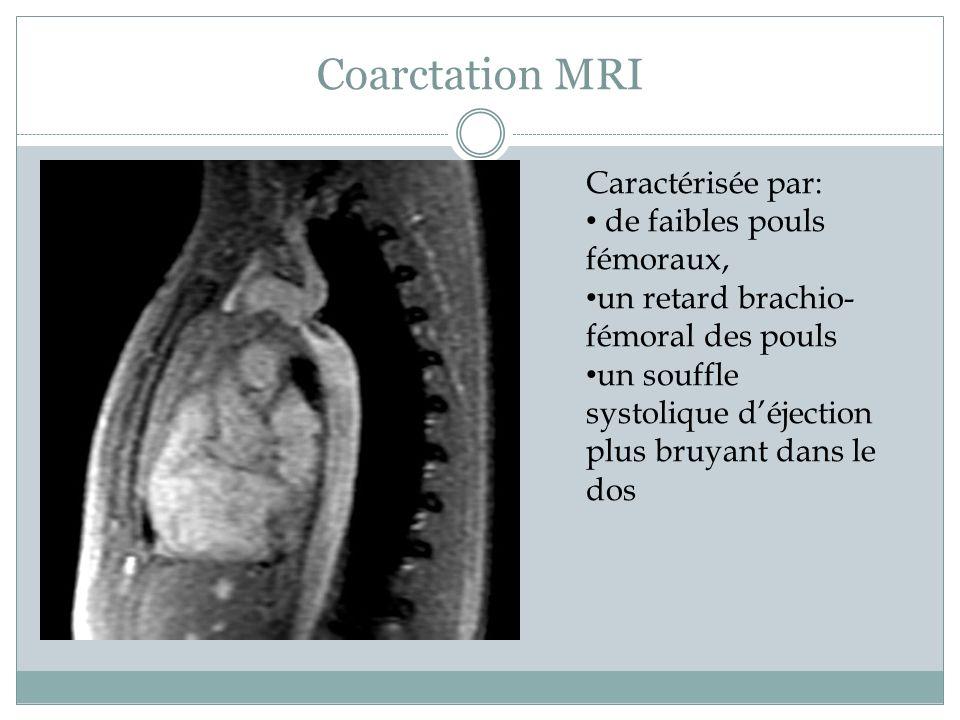 Coarctation MRI Caractérisée par: de faibles pouls fémoraux, un retard brachio- fémoral des pouls un souffle systolique déjection plus bruyant dans le dos