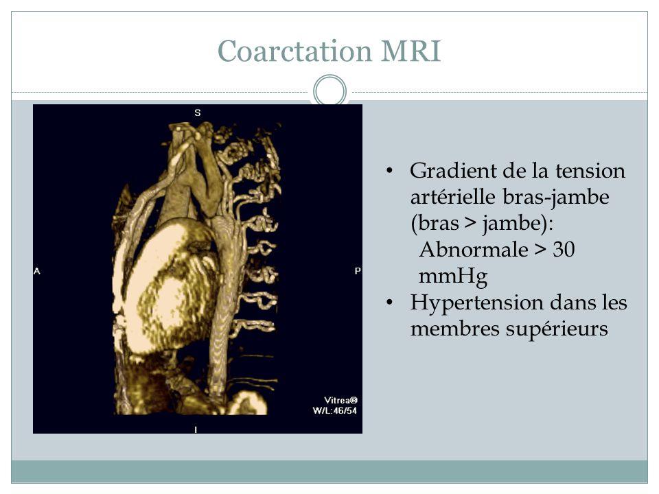 Coarctation MRI Gradient de la tension artérielle bras-jambe (bras > jambe): Abnormale > 30 mmHg Hypertension dans les membres supérieurs