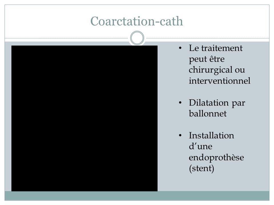 Coarctation-cath Le traitement peut être chirurgical ou interventionnel Dilatation par ballonnet Installation dune endoprothèse (stent)