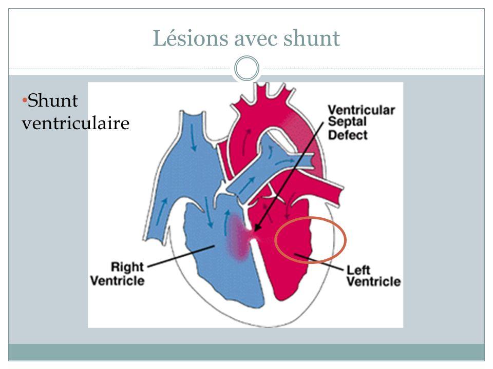 Lésions avec shunt Shunt ventriculaire