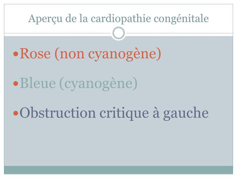 Aperçu de la cardiopathie congénitale Rose (non cyanogène) Bleue (cyanogène) Obstruction critique à gauche