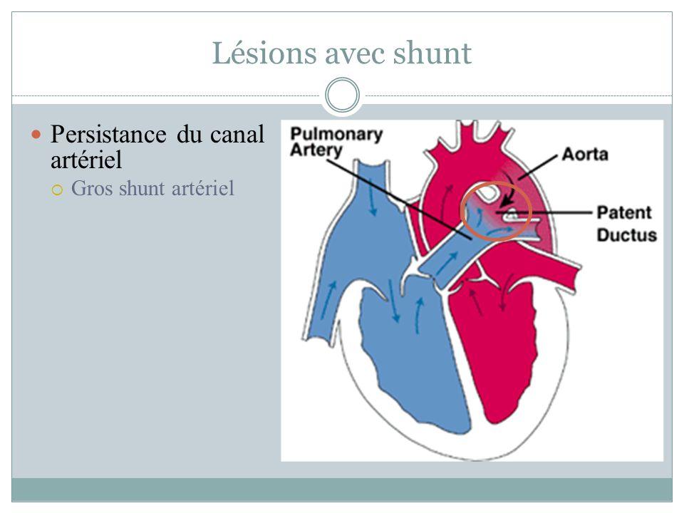 Lésions avec shunt Persistance du canal artériel Gros shunt artériel