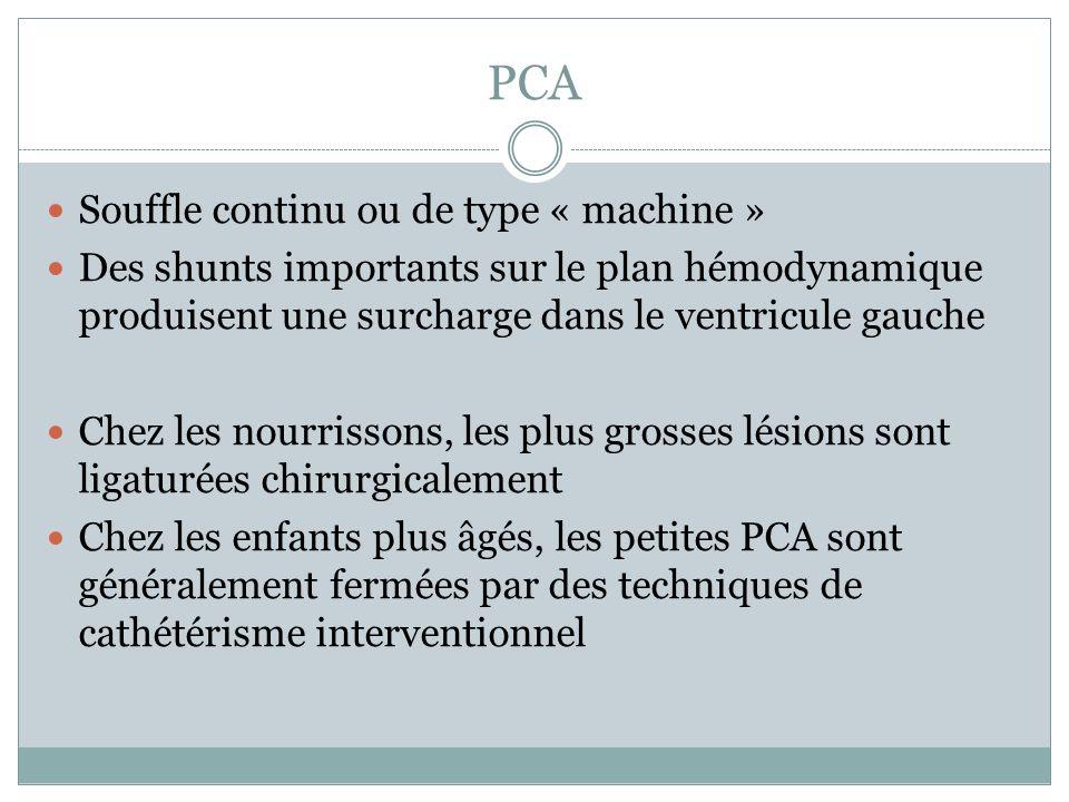 PCA Souffle continu ou de type « machine » Des shunts importants sur le plan hémodynamique produisent une surcharge dans le ventricule gauche Chez les nourrissons, les plus grosses lésions sont ligaturées chirurgicalement Chez les enfants plus âgés, les petites PCA sont généralement fermées par des techniques de cathétérisme interventionnel