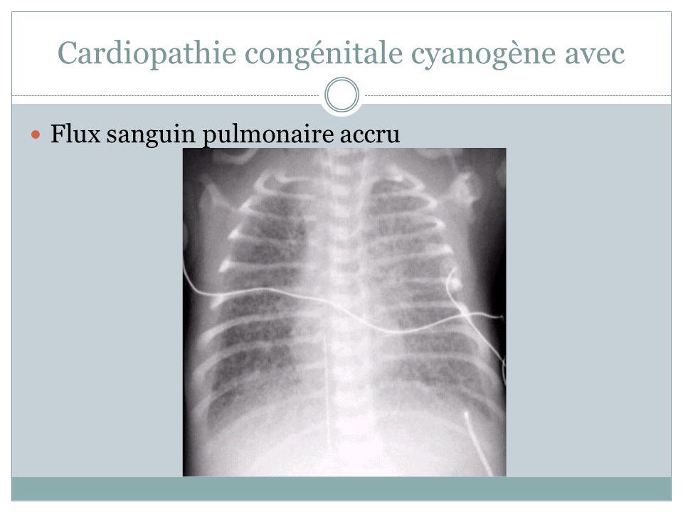 Cardiopathie congénitale cyanogène avec Flux sanguin pulmonaire accru