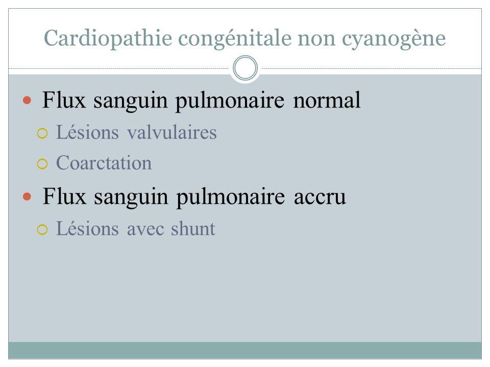 Cardiopathie congénitale non cyanogène Lésions valvulaires Sténose Aortique Pulmonaire Mitrale Régurgitation Aortique Mitrale Pulmonaire