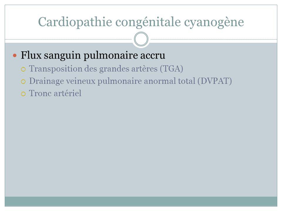 Cardiopathie congénitale cyanogène Flux sanguin pulmonaire accru Transposition des grandes artères (TGA) Drainage veineux pulmonaire anormal total (DVPAT) Tronc artériel