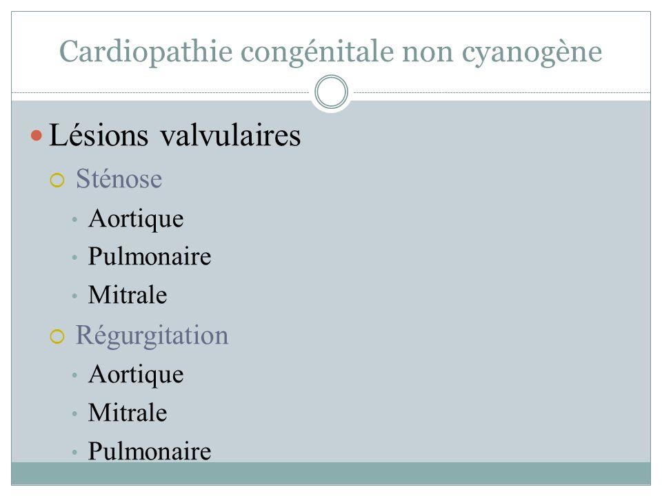 Cardiopathie congénitale non cyanogène Lésions sténosées – valvule sigmoïdes Dysplasie valvulaire Lésions à reflux – valvule sigmoïdes Dysplasie valvulaire Secondaire à une intervention pour les lésions sténosées Secondaire à une endocardite