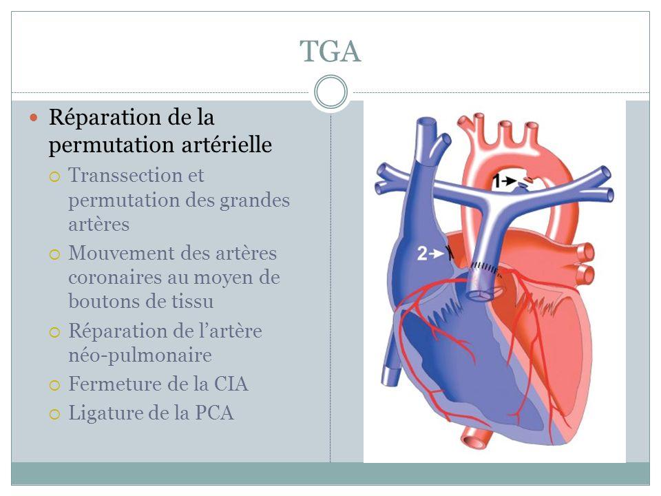 TGA Réparation de la permutation artérielle Transsection et permutation des grandes artères Mouvement des artères coronaires au moyen de boutons de tissu Réparation de lartère néo-pulmonaire Fermeture de la CIA Ligature de la PCA