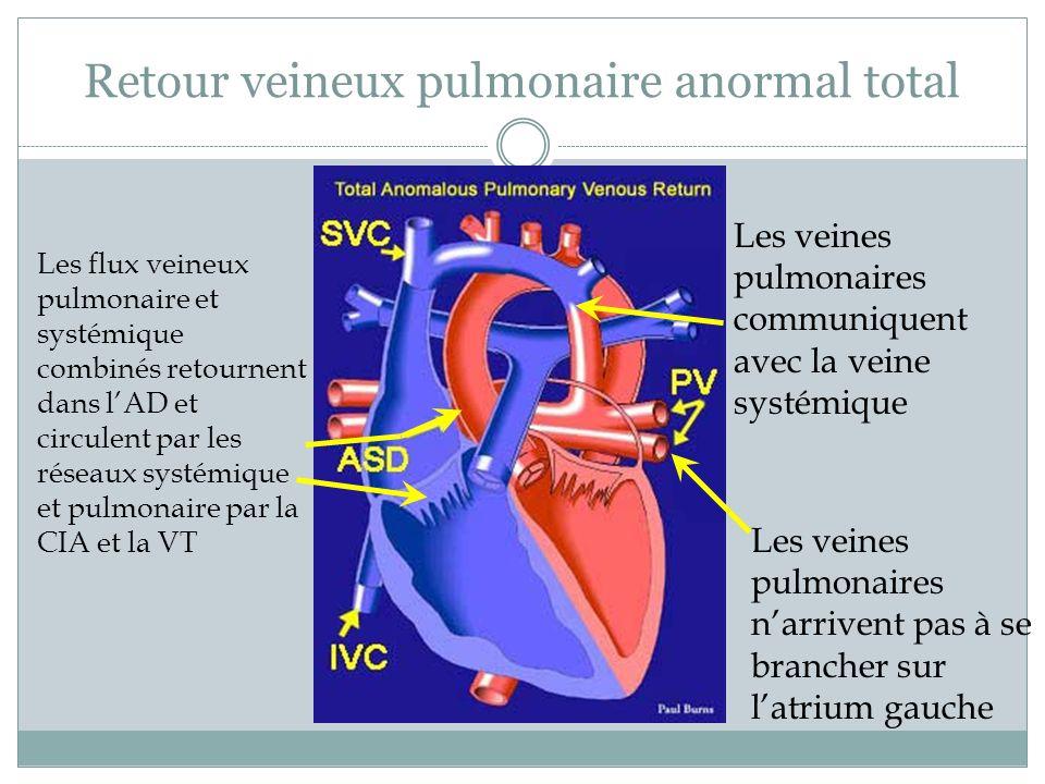Retour veineux pulmonaire anormal total Les veines pulmonaires narrivent pas à se brancher sur latrium gauche Les veines pulmonaires communiquent avec la veine systémique Les flux veineux pulmonaire et systémique combinés retournent dans lAD et circulent par les réseaux systémique et pulmonaire par la CIA et la VT