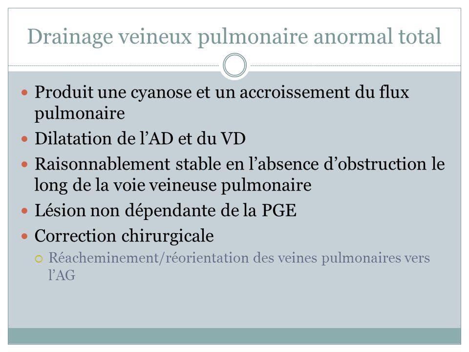 Drainage veineux pulmonaire anormal total Produit une cyanose et un accroissement du flux pulmonaire Dilatation de lAD et du VD Raisonnablement stable en labsence dobstruction le long de la voie veineuse pulmonaire Lésion non dépendante de la PGE Correction chirurgicale Réacheminement/réorientation des veines pulmonaires vers lAG