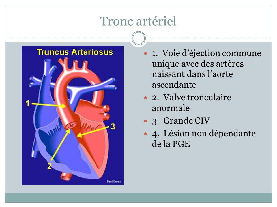 Tronc artériel 1.Voie déjection commune unique avec des artères naissant dans laorte ascendante 2.